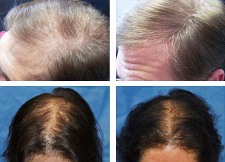 laser hair loss treatment prevention therapy worcester ma