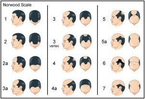 Laser hair loss treatment therapy Worcester MA Hair Regrowth