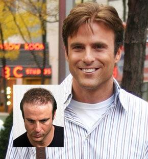 Mens Hair Replacement Worcester Massachusetts
