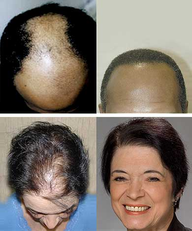 hair transplant doctor worcester ma